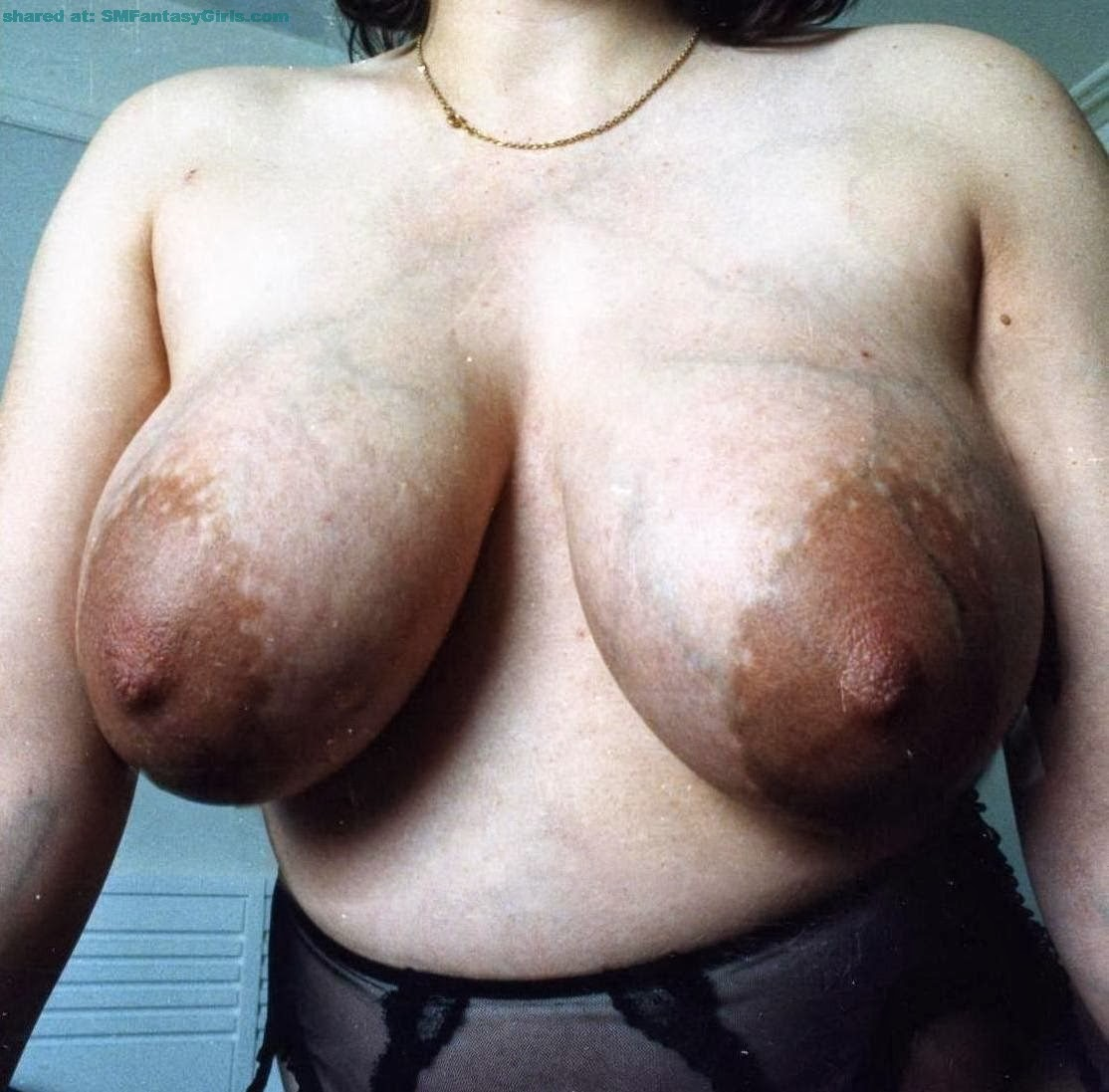 Protruding veins chest breast