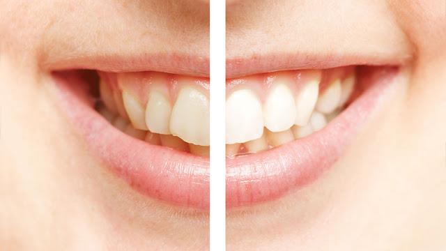 wybielone zęby