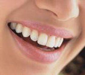 Mengenal Tipe Wanita dari Bentuk Giginya