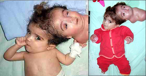 Baby Born with Two Heads