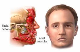 mengobati lemah saraf