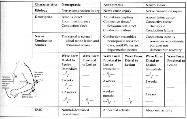 Nerve injury classification-1.bp.blogspot.com