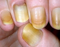 Nails In Health And Disease, Nail Discolouration