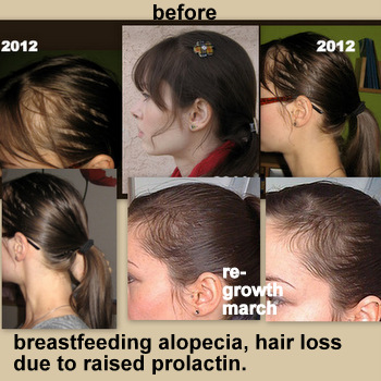 Propecia after chemo