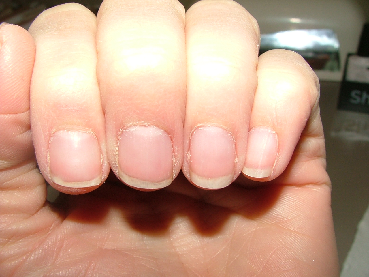 I Will Show A Pic Of My Nails Directly After Removing Shellac You Can See Sidewalls Are Very Dry In This DO Solar Oil Nightly But The