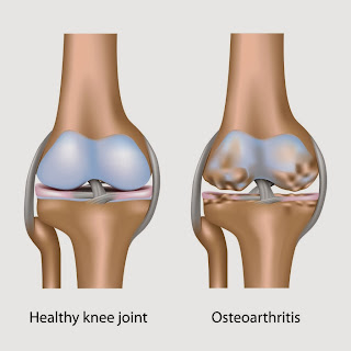 Knee replacement cost India