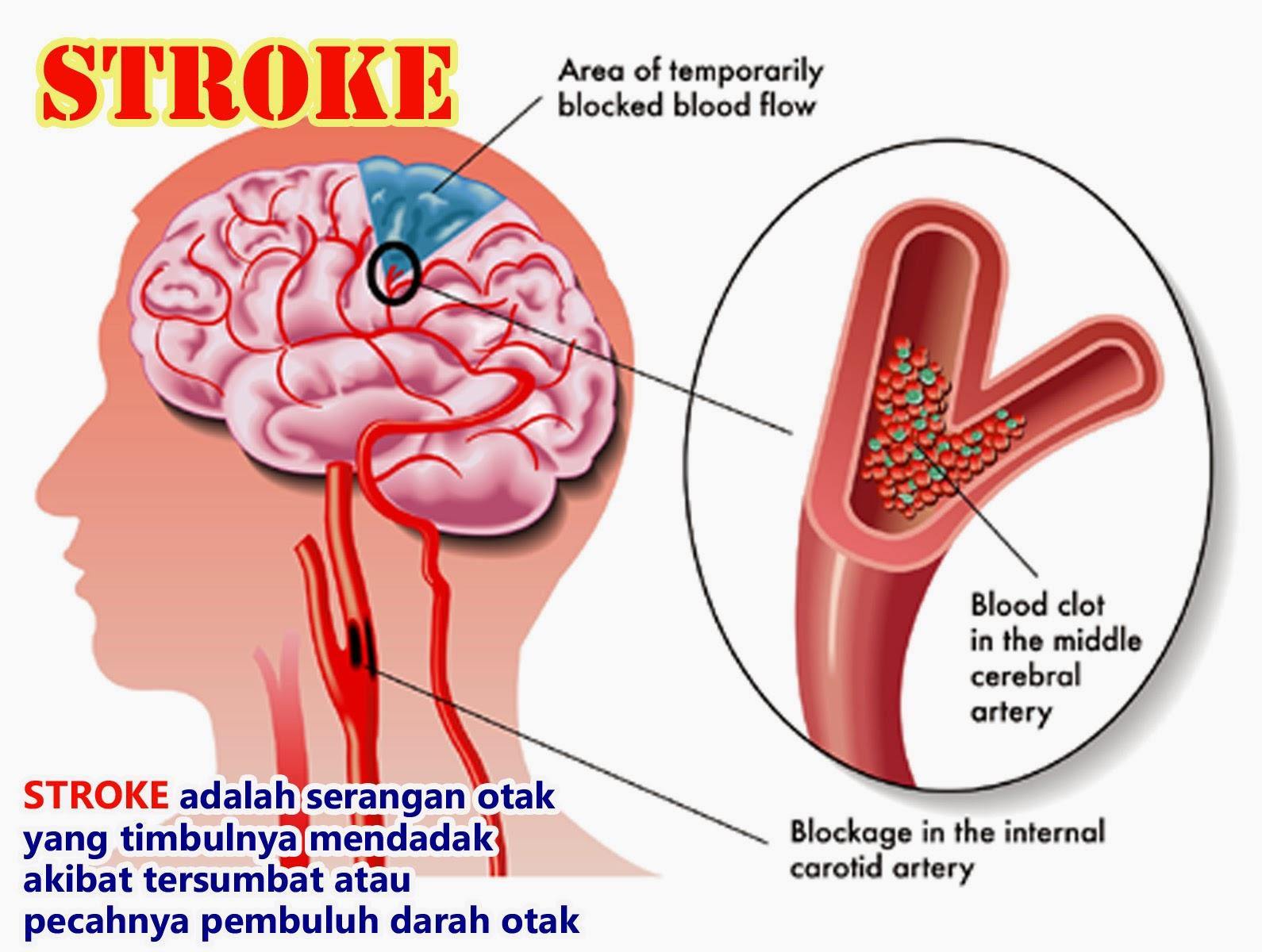 gejala penyakit stroke cara pencegahan dan pengobatannya