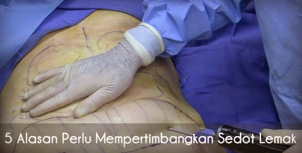 Mesoterapi: Sedot Lemak Tanpa Operasi