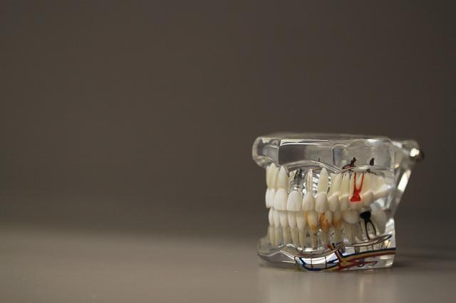 Cara Merawat Gigi Palsu Lepasan