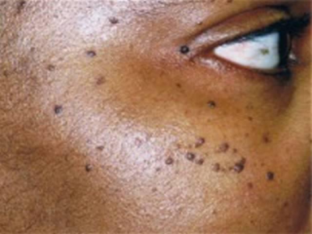 Facial redness repair tridermamd