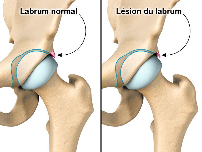 Douleur des fesses droite ou gauche et jambe, dos, hanche