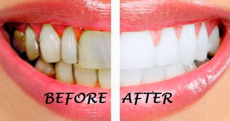 the best natural teeth whitening technique that can transform your health recommended by doctors. Black Bedroom Furniture Sets. Home Design Ideas