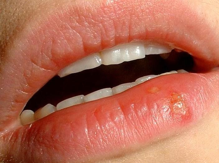 koortslip in de mond