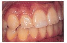 Menjaga Kesehatan Mulut