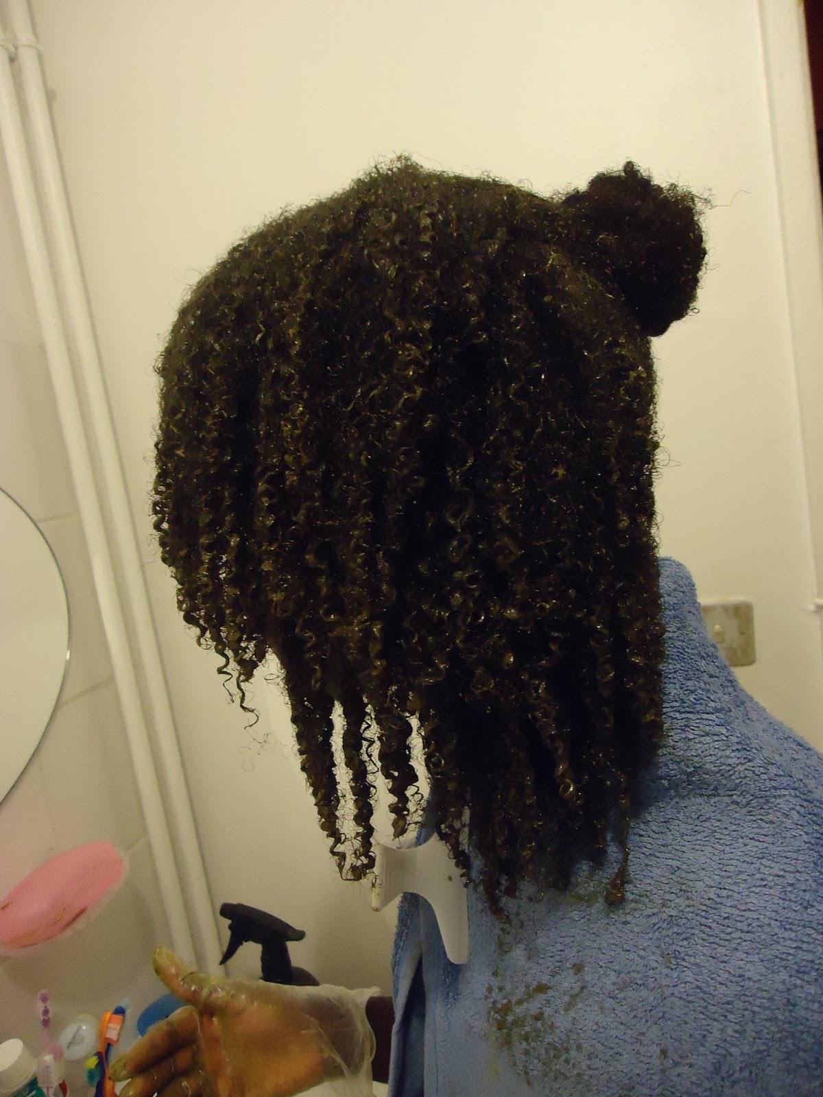 Les chutes des cheveux après finasterid