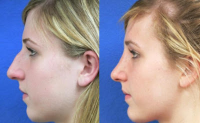 The Basics of Chin Liposuction