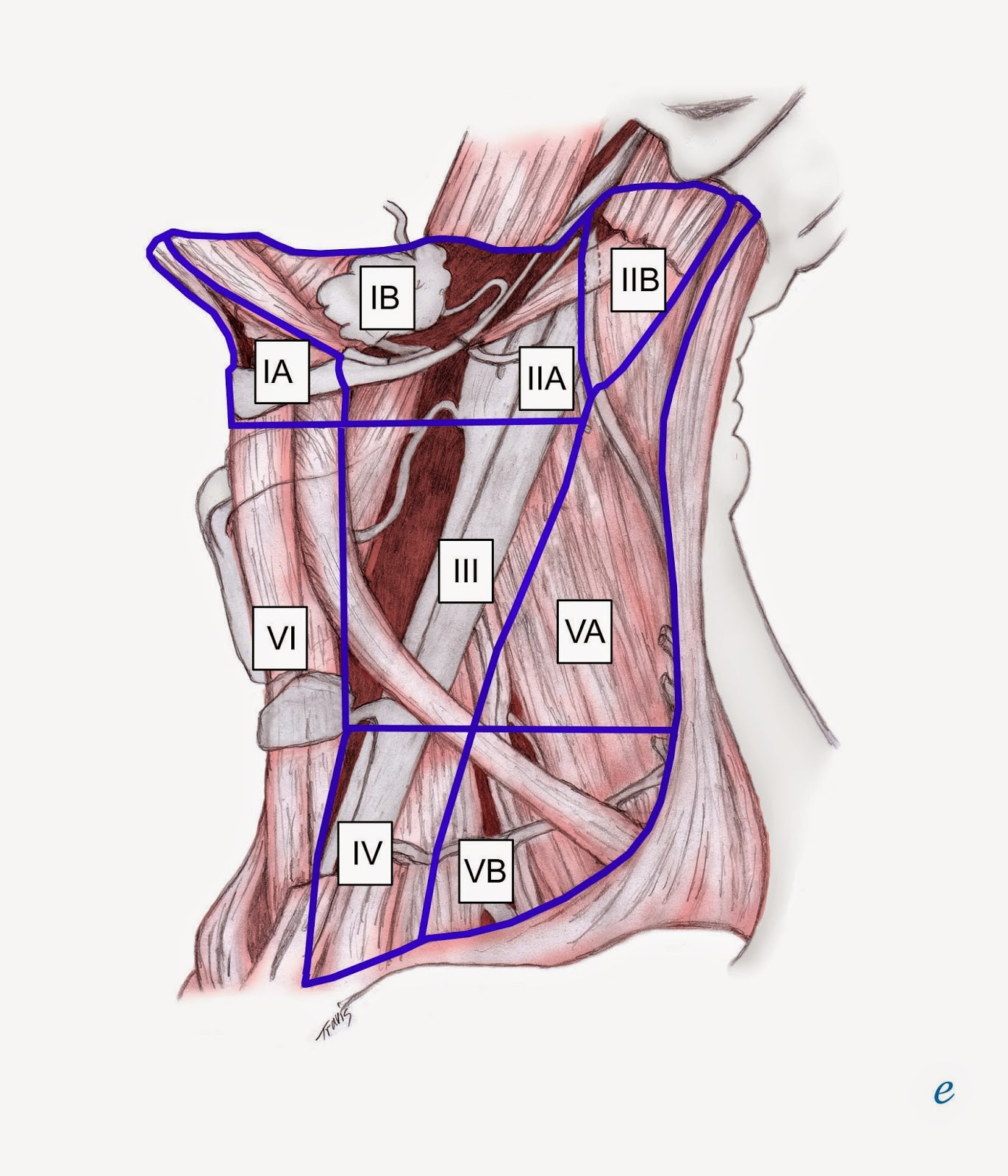 The posterior border of level ii is the posterior border of the sternocleidomastoid muscle