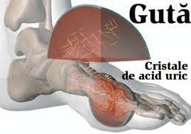Remedii naturiste pentru guta