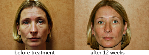Red-Light Therapy Before and After
