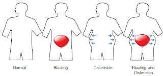 diagram of lower abdomen  diagram  free engine image for