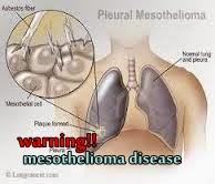 penyakit mesothelioma, mesothelioma, penyakit kanker paru, penyakit kanker