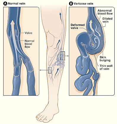 Varicose Vein Procedures CPT-4 Codes: Therapy, Supplies and Evaluation