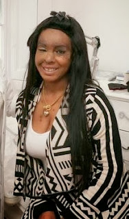 Nigerian acid attack victim Naomi Oni has eyebrows restored