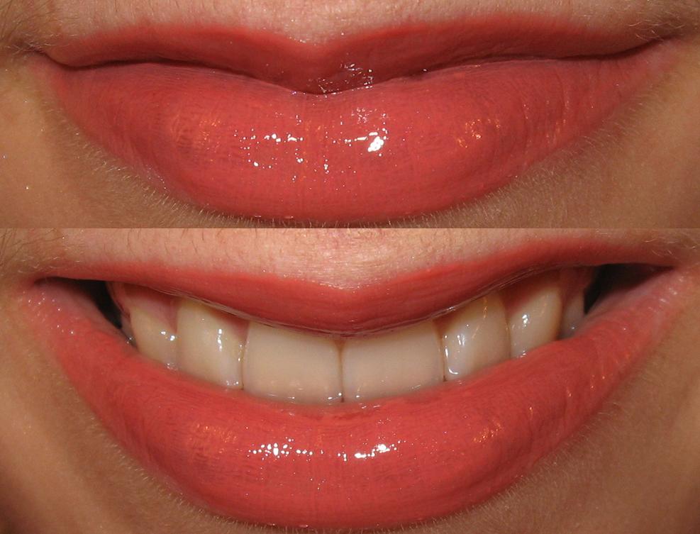 revlon coral berry lipstick. Revlon lip gloss in Coral