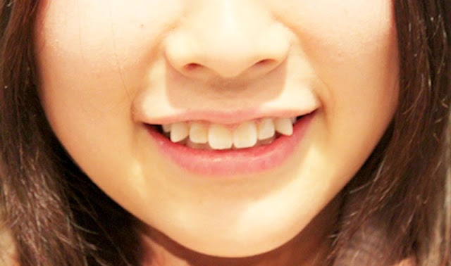 Dokter gigi - mengatasi gigi berlubang dan sakit