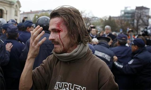 окървавена глава на студент -снимка Ройтерс