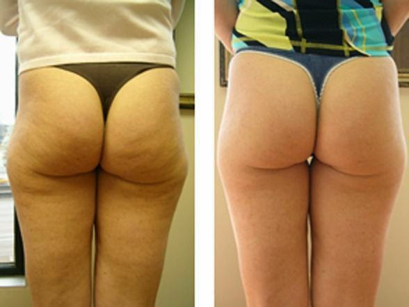 How Does the Cellulite Laser Treatment Work?