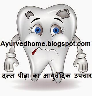 Teeth Pain Remedies in Hindi  दन्त पीड़ा का आयुर्वेदिक उपचार