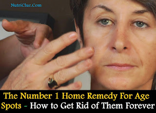 The Number 1 Home Remedy For Age Spots - How to Get Rid of Them Forever