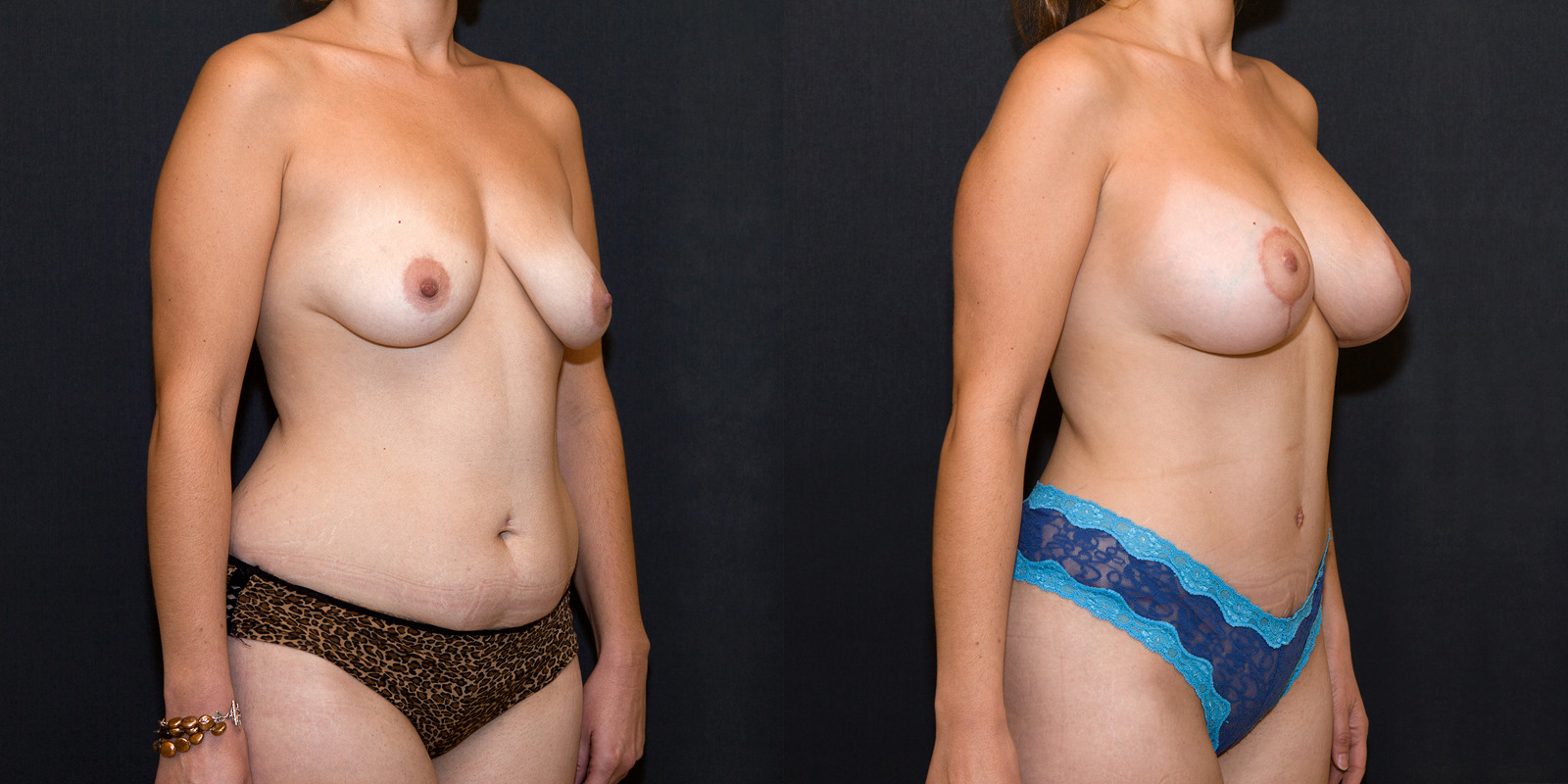 Breast enlargements before and after pictures