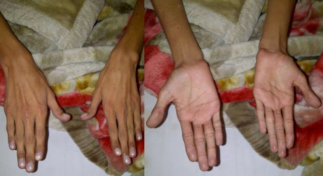 Medicotips: the hand in Marfan syndrome.