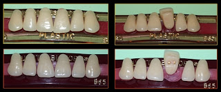 Selection & Arrangement of Teeth for RPD & The Denture Base PPT