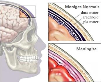 Exame meningite