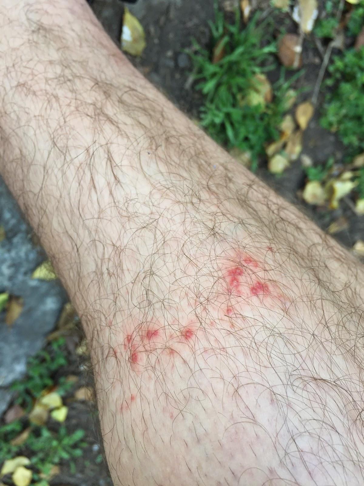 Chigger Bites