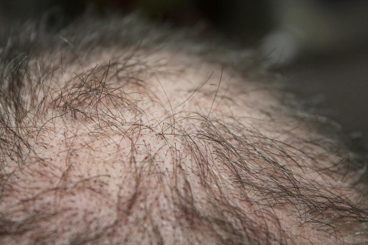Transplante implante capilar imagem homem calvo