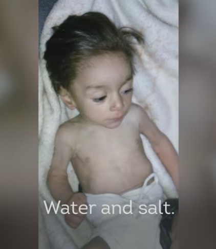 Video: Melihat Kondisi Kelaparan dan Kematian di Madaya