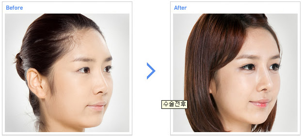 how to lose forehead fat