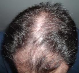 que es bueno para la caida de cabello