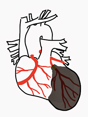 Heart has become  Stretched the Cavity Dilated -  Reducing Pumping Capability