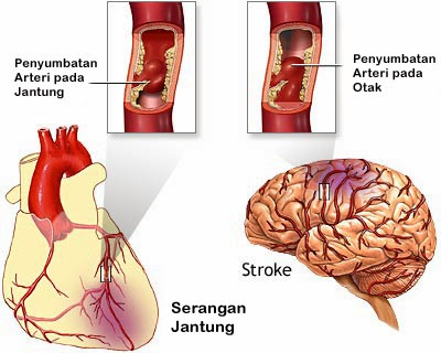 http://pengobatansinusitis01.blogspot.com/2014/02/pengobatan-jantung-koroner-dan-stroke.html