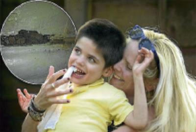 RACHEL dan anaknya, Zach. (Gambar kecil) Keadaan plaster bilik yang dimakan Zach.
