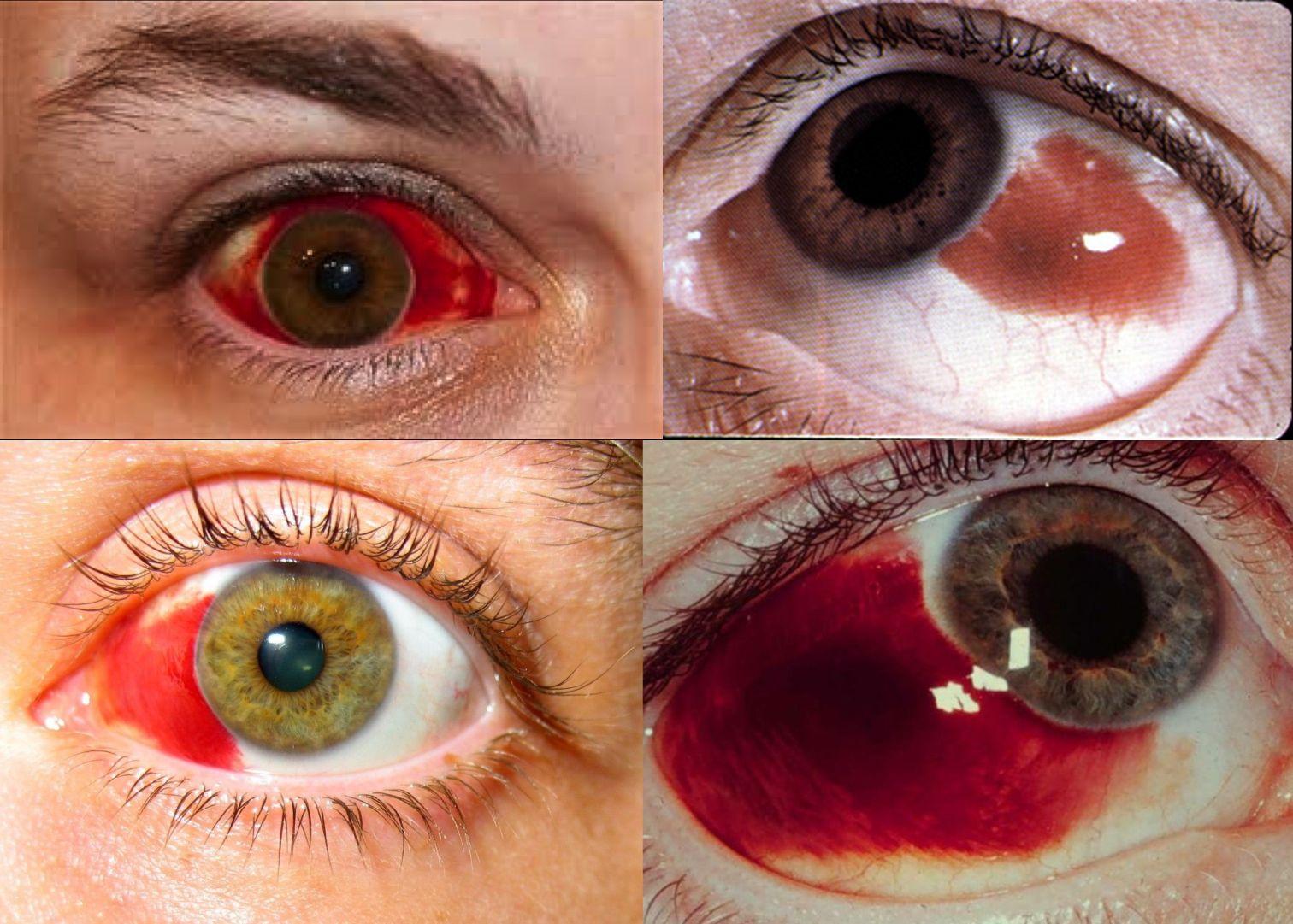 Göz kanlanması nasıl geçer