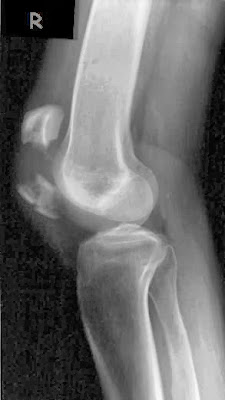 Displaced horizontal patella fracture