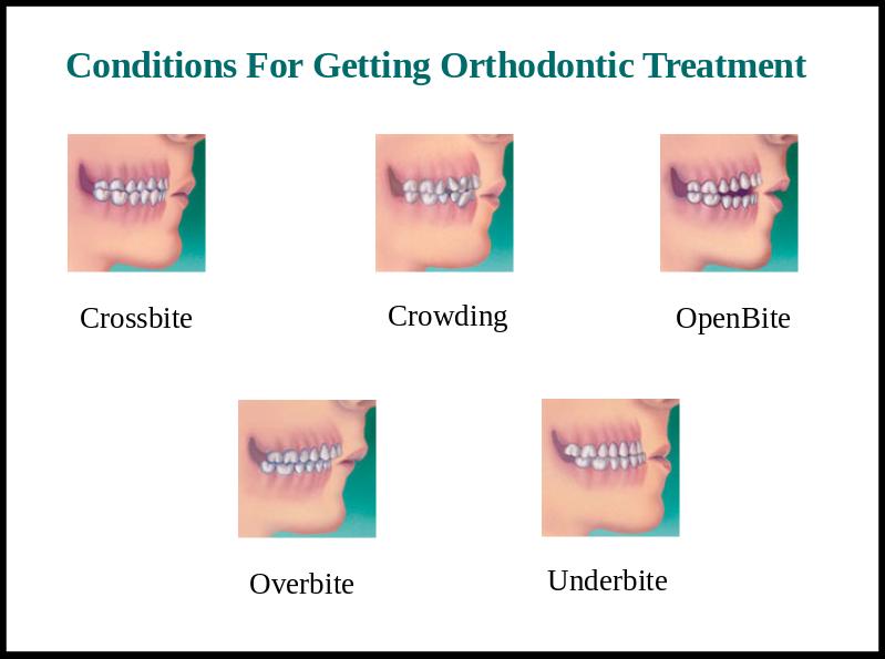 orthodontics treatment in bangalore
