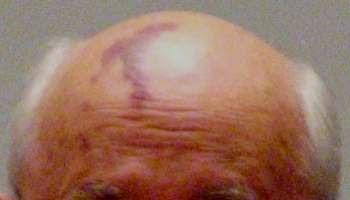 Image of port wine stain birthmark
