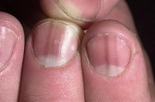 Las sustancias desinfectantes del hongo de los pie